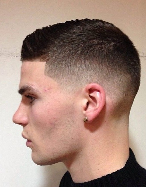 Hair Loss On The Sides In A Uniform Pattern Like This And Long Neck Nape Is Typically Known As Retrograde Alopecia